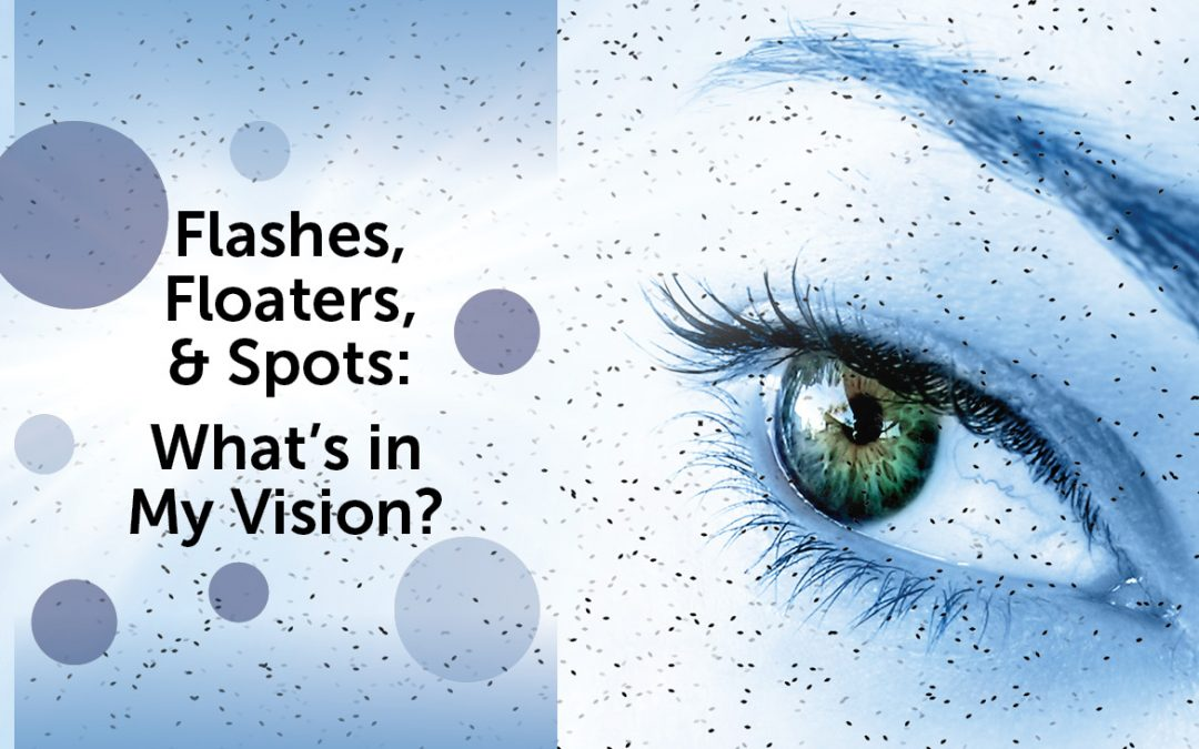 Flashes, Floaters, and Spots: What's in my Vision?